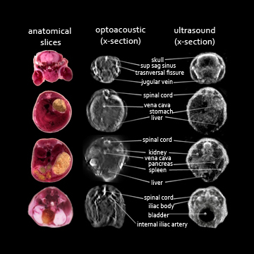 anatomical, optoacoustic and ultrasound image slices