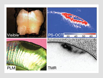 Lasers And Optics For Measuring Tooth Decay Optics